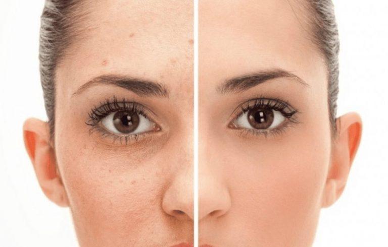 آیا مواد آرایشی باعث تشدید آکنه و جوش میشود؟