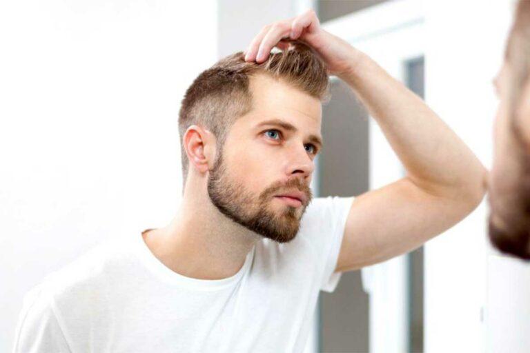 علت ریزش مو در مردان، از صفر تا صد