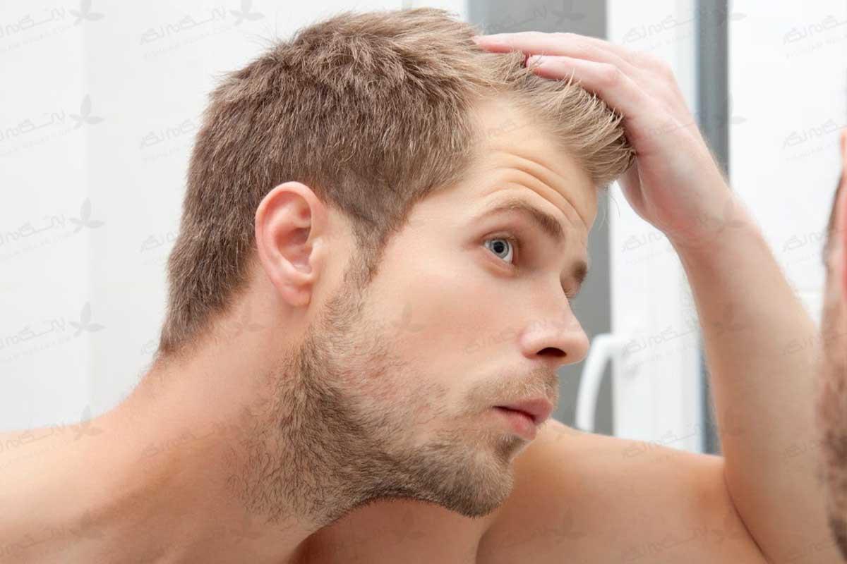 علت ریزش مو در مردان